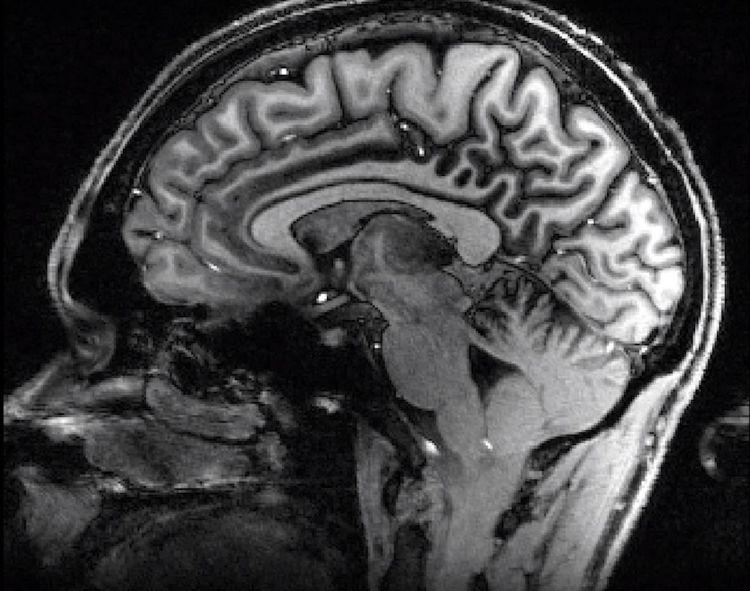 Delwedd du a gwyn o ymennydd, yn dangos manylder sgan MRI 7 Tesla
