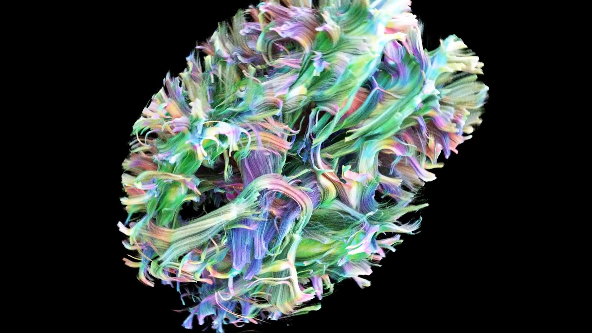 Visualisation showing the stringy microstructure of the brain.